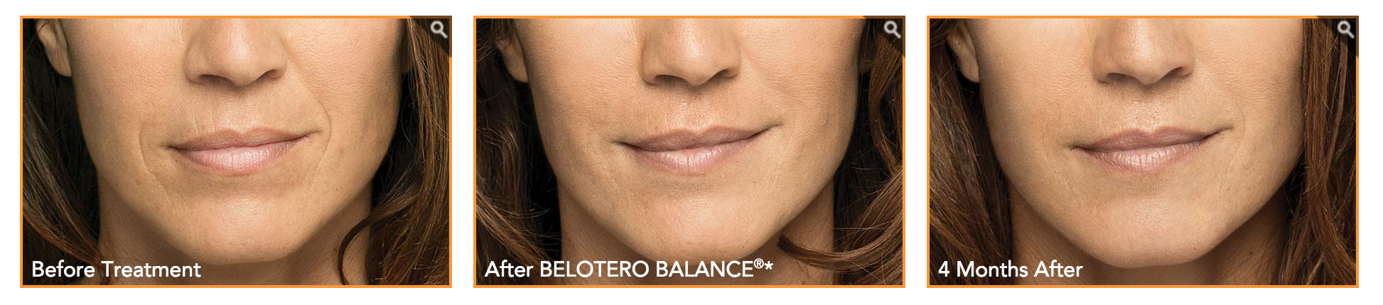 Belotero before and after results
