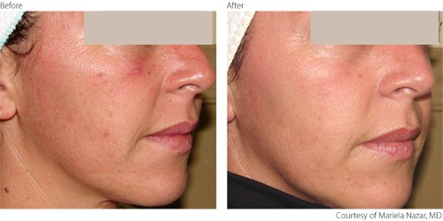 Before and after IPL treatments