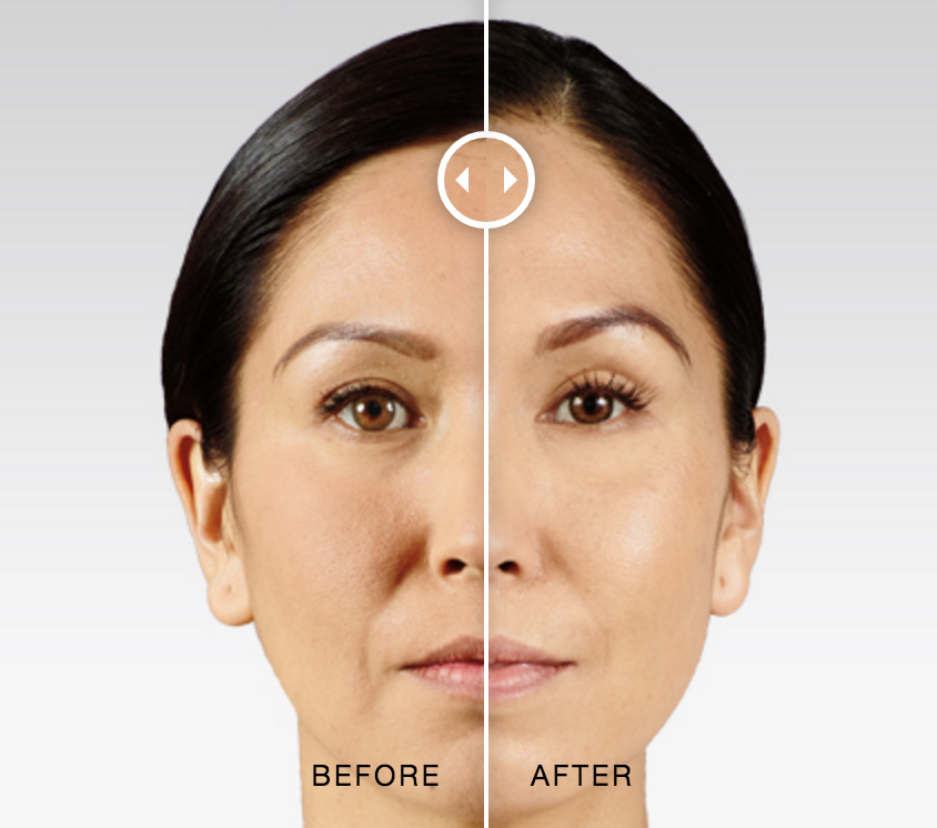 Before and after Juvederm Voluma photos
