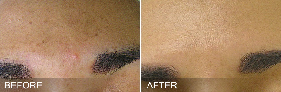 Hydrafacial before and after - 3