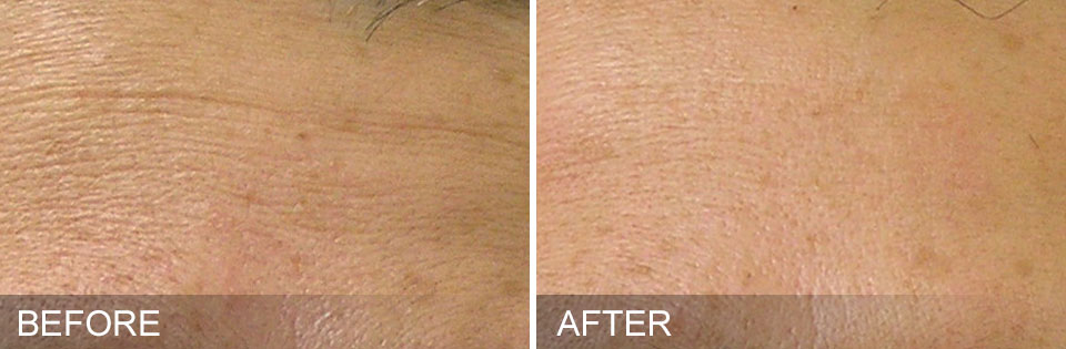 Hydrafacial before and after - 1