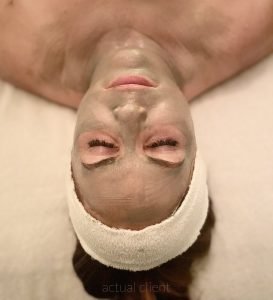 July Specials at Abbracci Medical Spa – A Summer Feast for the Face!